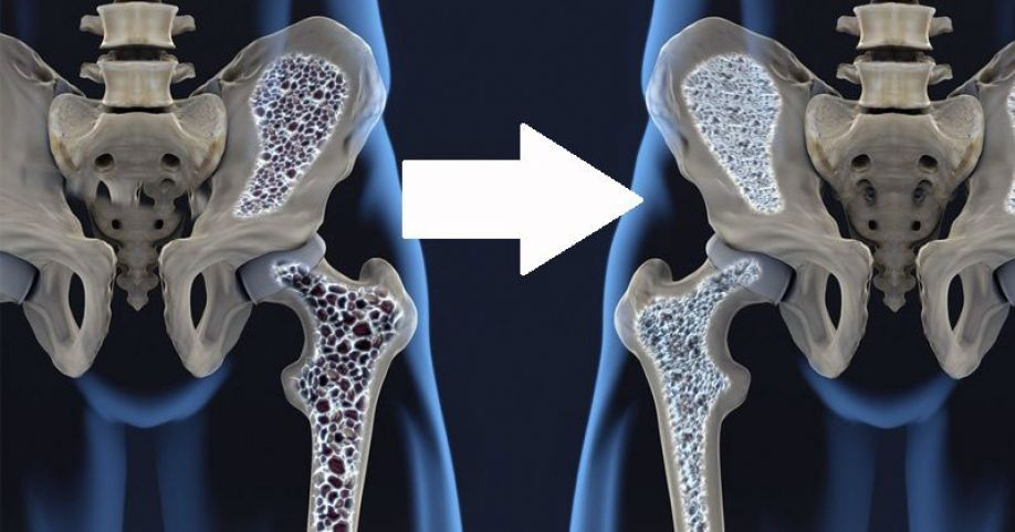 How a Mediterranean diet could reduce bone loss in osteoporosis