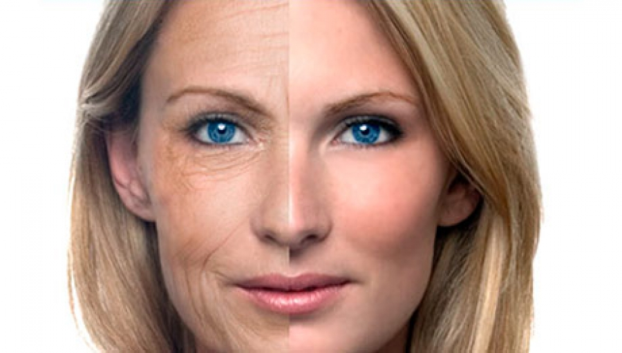 Vegetable peptones may reduce skin aging